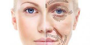 Ögonlockslyft utan kirurgi med plasmapen